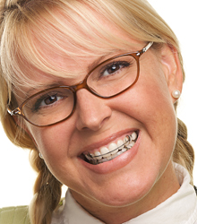 Smiling woman with a retainer